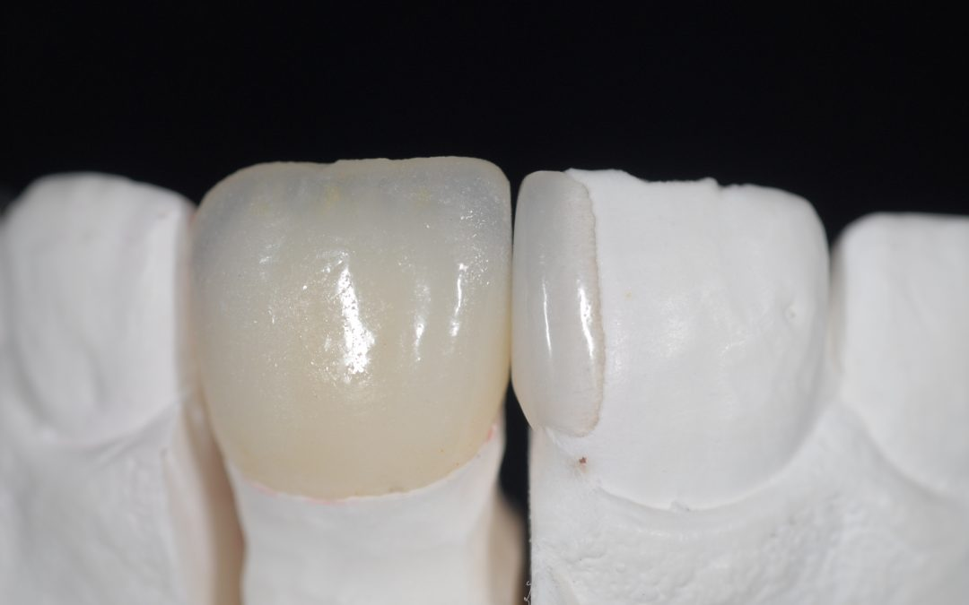 Additional veneer: una soluzione minimamente invasiva