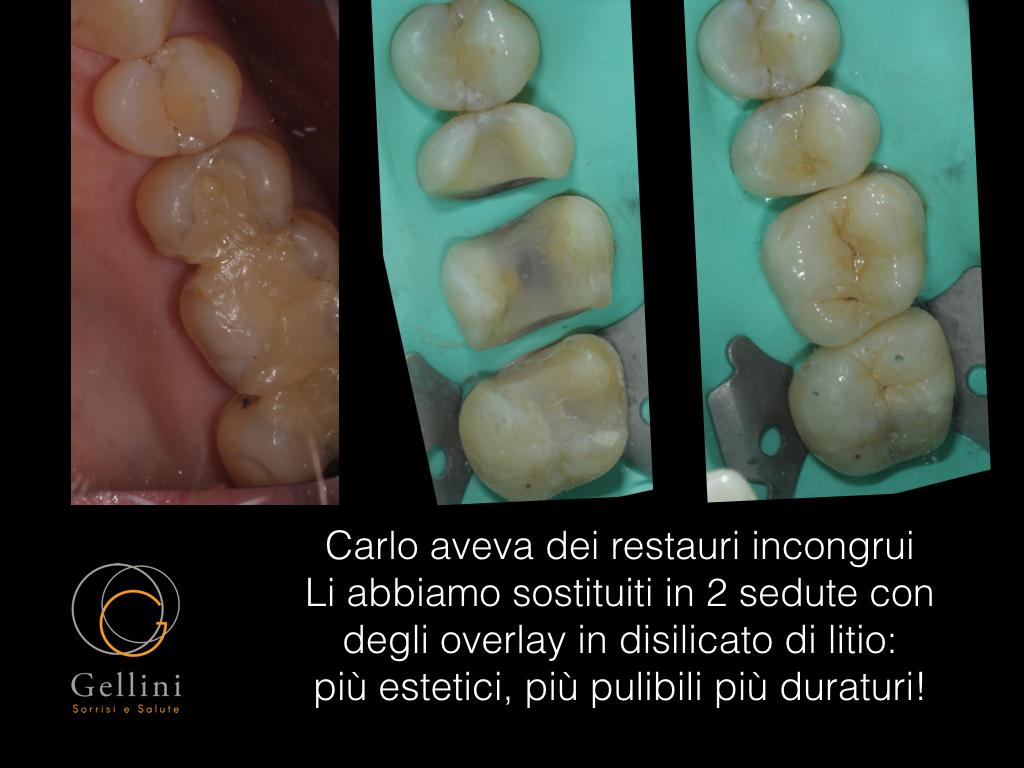 overlay-in-disilicato-carlo-01