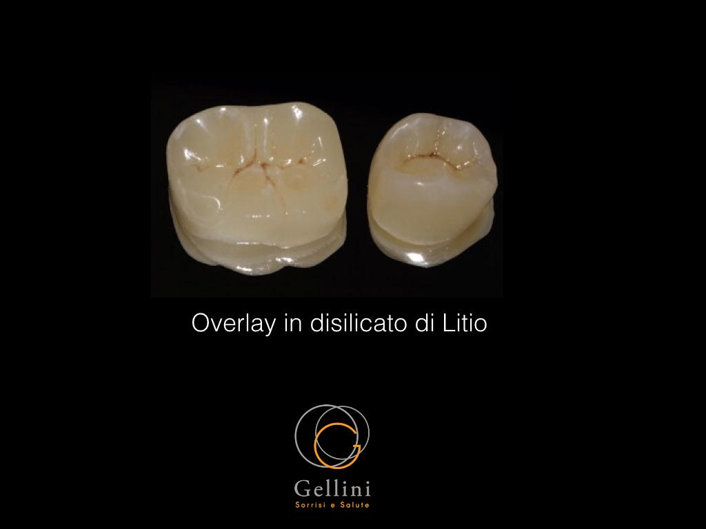 overlay-in-disilicato-carlo-02
