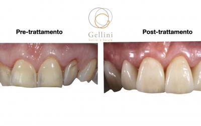 Erosione dentale e invecchiamento precoce dei denti: un fenomeno che conosciamo e che possiamo risolvere.